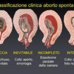 Aborto spontaneo: perché succede?