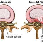 Ernia del disco: cause, sintomi e rimedi