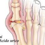 Acido urico: cos'è e cosa bisogna fare quando è troppo alto
