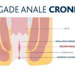 Ragade anale: cos'è, come si cura e si previene