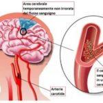 TIA: causa, sintomi, e cura dell'attacco ischemico transitorio