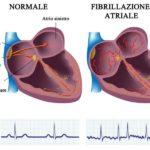 Fibrillazione atriale: Sintomi, cause e cure