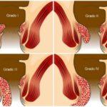 Come curare le emorroidi