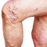 Vene varicose, cosa sono e come si possono trattare con l'idromassaggio