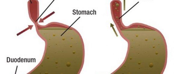cosa evitare con reflusso gastrico