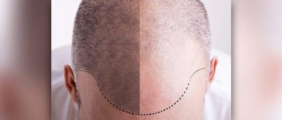 foto-tricopigmentazione-capelli