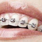 Apparecchio per i denti: che cosa bisogna sapere