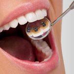 Apparecchio linguale: l'alleato per un sorriso vincente