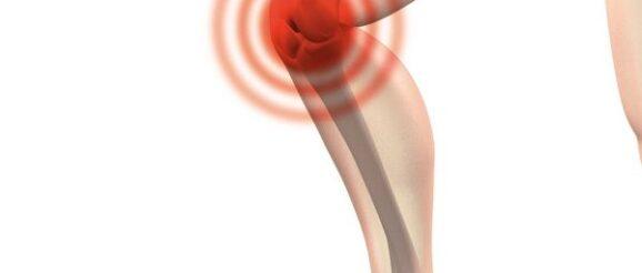 dolore al ginocchio quando piego e quando stendo la gamba