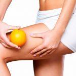 Cellulite: cause e rimedi