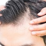 Perché cadono i capelli: cause e rimedi per la calvizie
