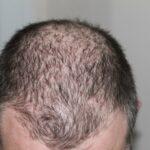 Come scegliere i prodotti giusti per la ricrescita dei capelli