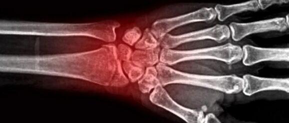 invalidità frattura epifisi distale radio